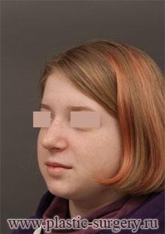 Rhinoplasty (Nose Surgery)  Deviated Septum Surgery - Cosmetology